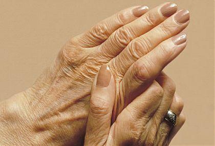 artrit 4