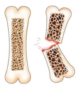 Остеопороза 1
