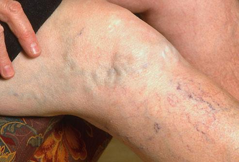 varicose-veins 1