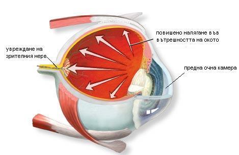 glaukoma 1